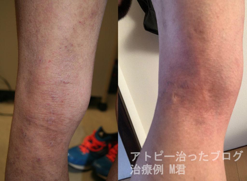 アトピー治す治療Mさん足