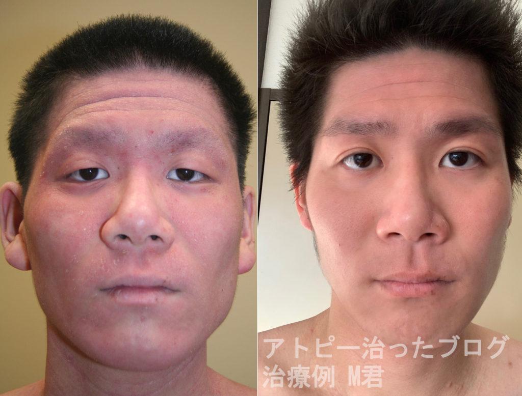 【アトピー改善例】ステロイド、漢方薬などを試していたMさん顔症状