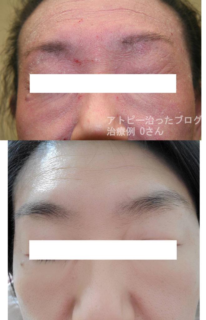 藤沢皮膚科、脱ステ脱保湿後アトピーが完治したOさん症例1