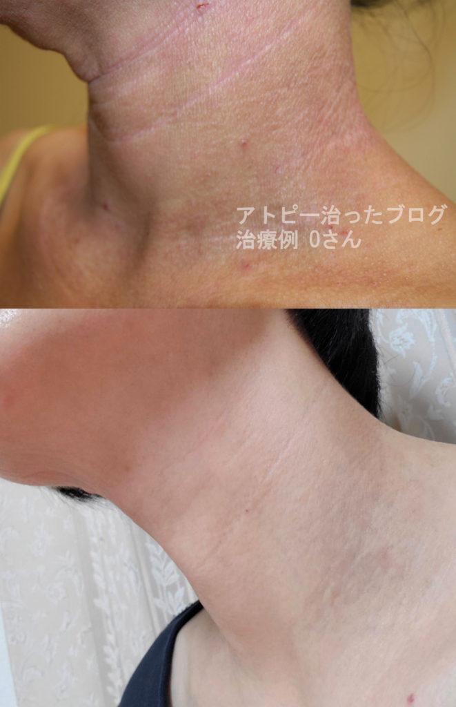 藤沢皮膚科、脱ステ脱保湿後アトピーが完治したアトピー症例2