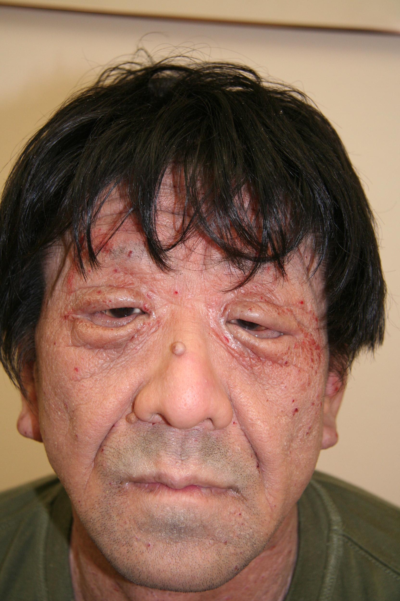 アトピー性皮膚炎完治