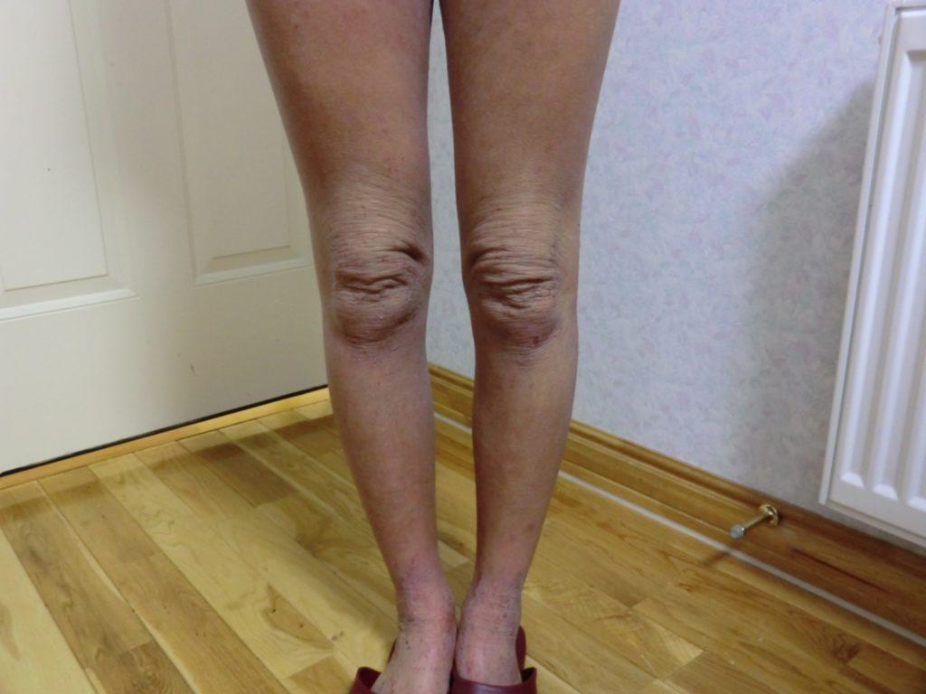 アトピー画像・脱ステ・脱保湿で足がしわしわに。