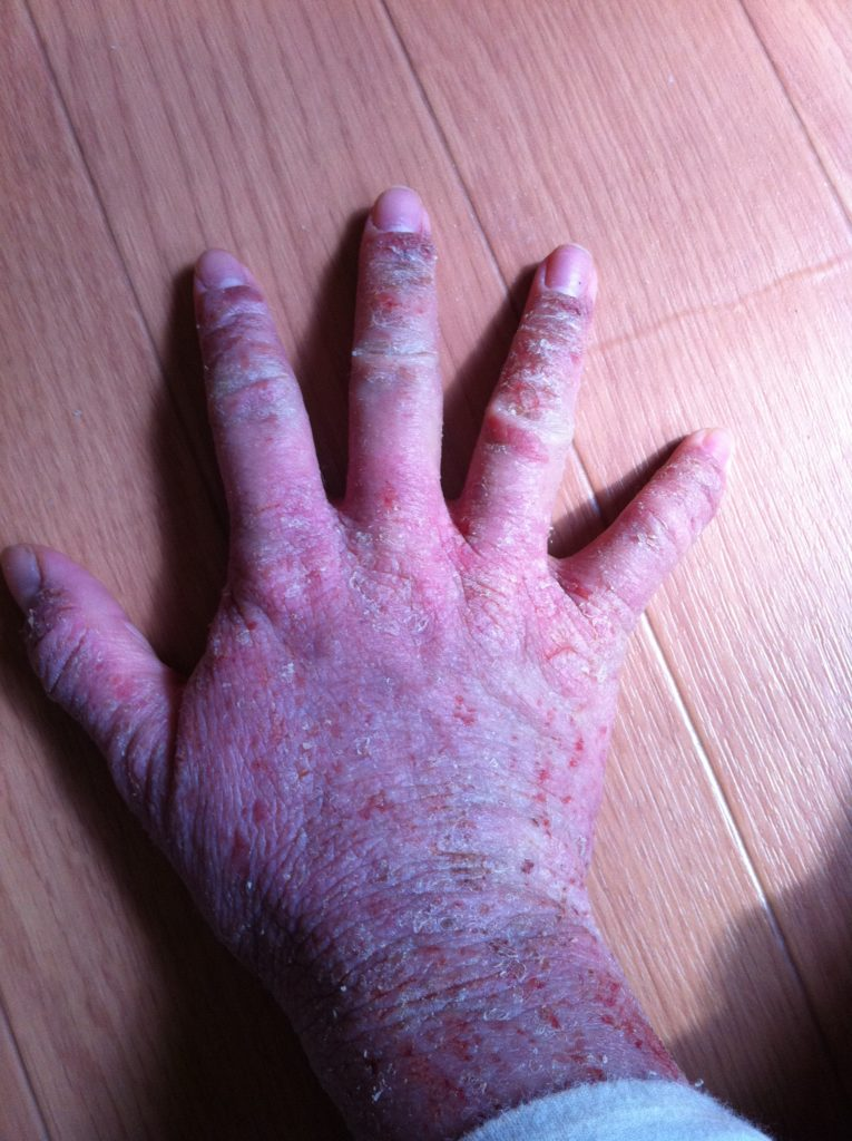 脱保湿した時の手