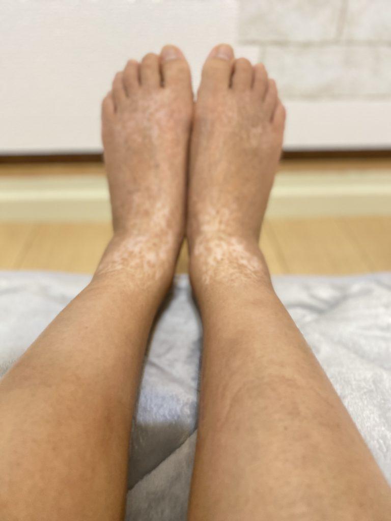 渡米治療後のアトピー画像・足