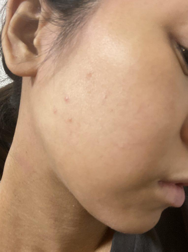 秋花粉で肌荒れスキンケアで改善中