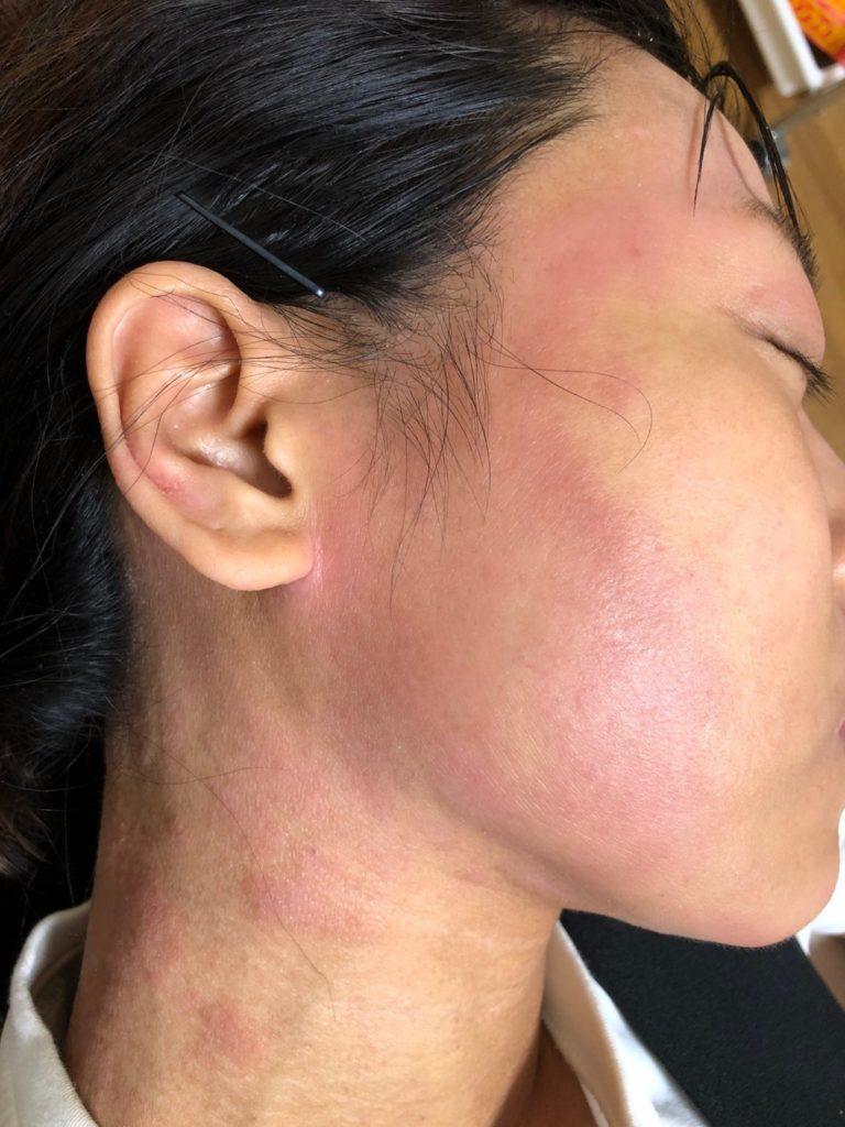 秋花粉で肌荒れアトピー悪化